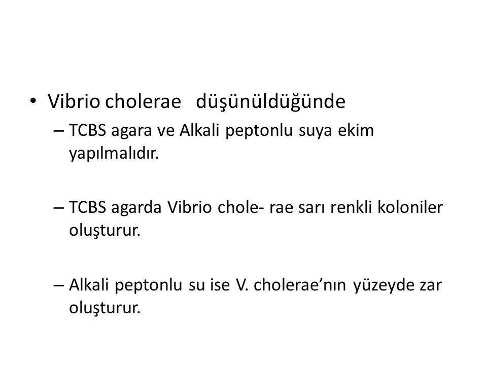 Vibrio cholerae düşünüldüğünde – TCBS agara ve Alkali peptonlu suya ekim yapılmalıdır. – TCBS agarda Vibrio chole- rae sarı renkli koloniler oluşturur