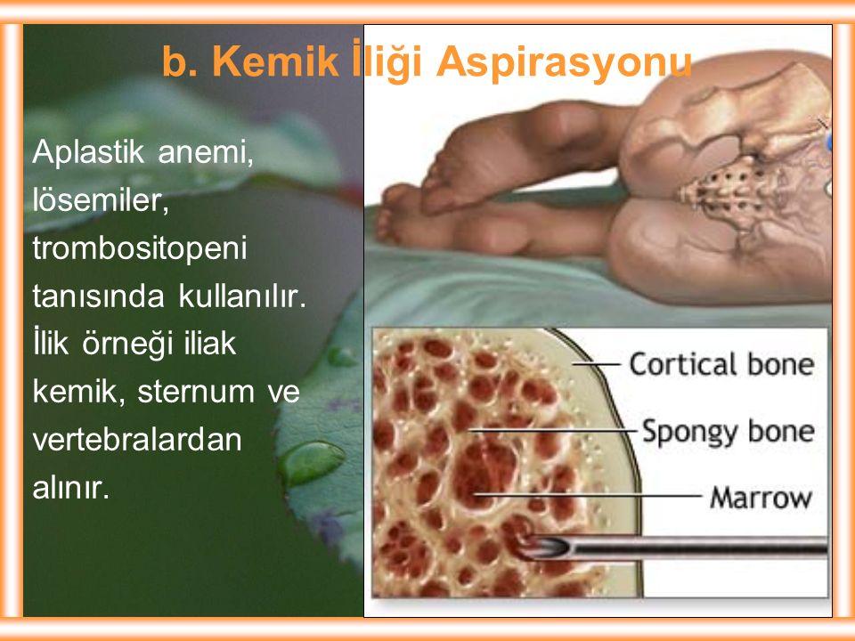 b. Kemik İliği Aspirasyonu Aplastik anemi, lösemiler, trombositopeni tanısında kullanılır. İlik örneği iliak kemik, sternum ve vertebralardan alınır.
