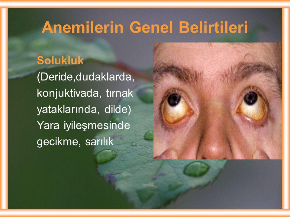 Anemilerin Genel Belirtileri Solukluk (Deride,dudaklarda, konjuktivada, tırnak yataklarında, dilde) Yara iyileşmesinde gecikme, sarılık