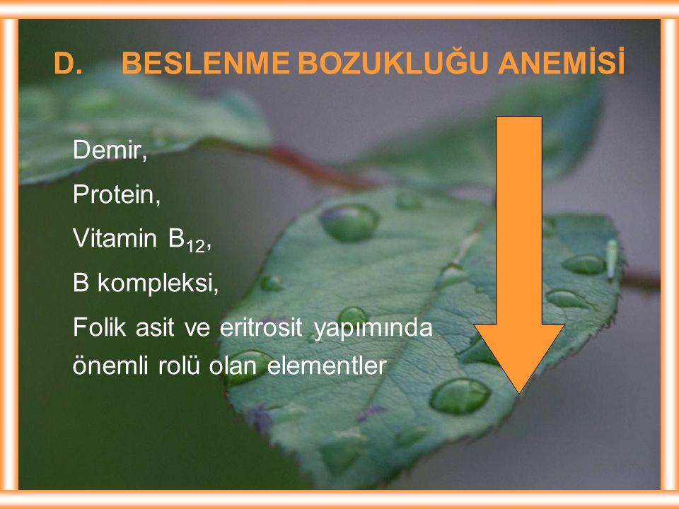 D.BESLENME BOZUKLUĞU ANEMİSİ Demir, Protein, Vitamin B 12, B kompleksi, Folik asit ve eritrosit yapımında önemli rolü olan elementler