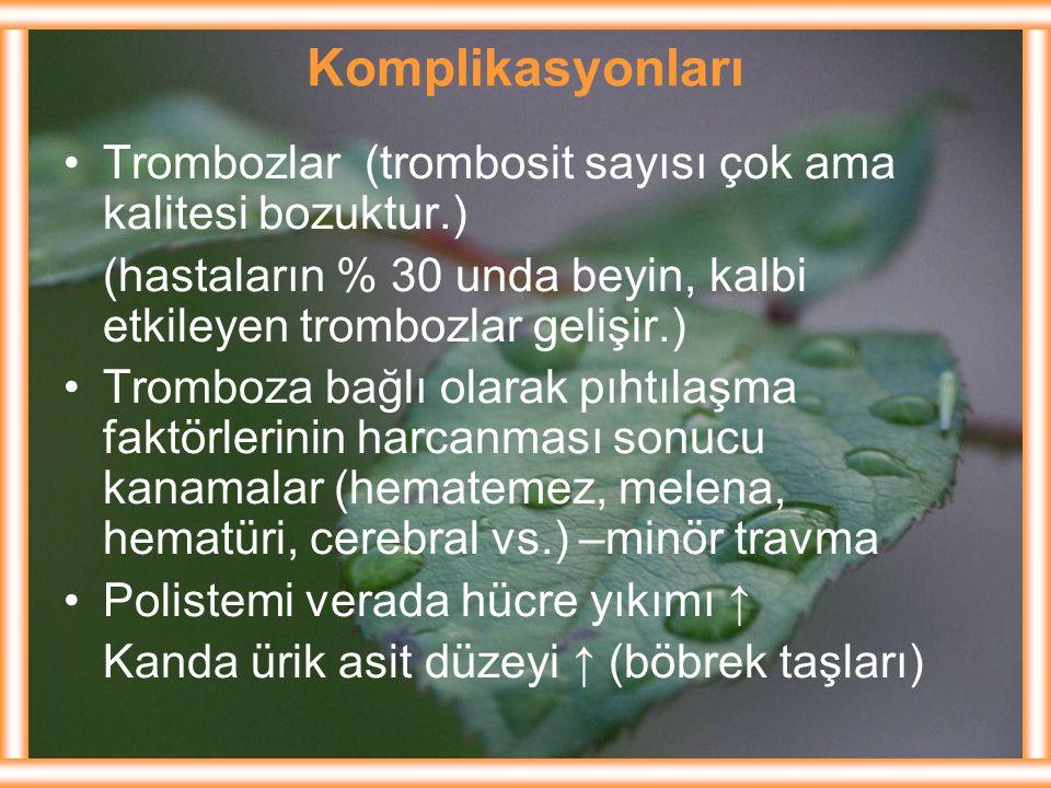 Komplikasyonları Trombozlar (trombosit sayısı çok ama kalitesi bozuktur.) (hastaların % 30 unda beyin, kalbi etkileyen trombozlar gelişir.) Tromboza b