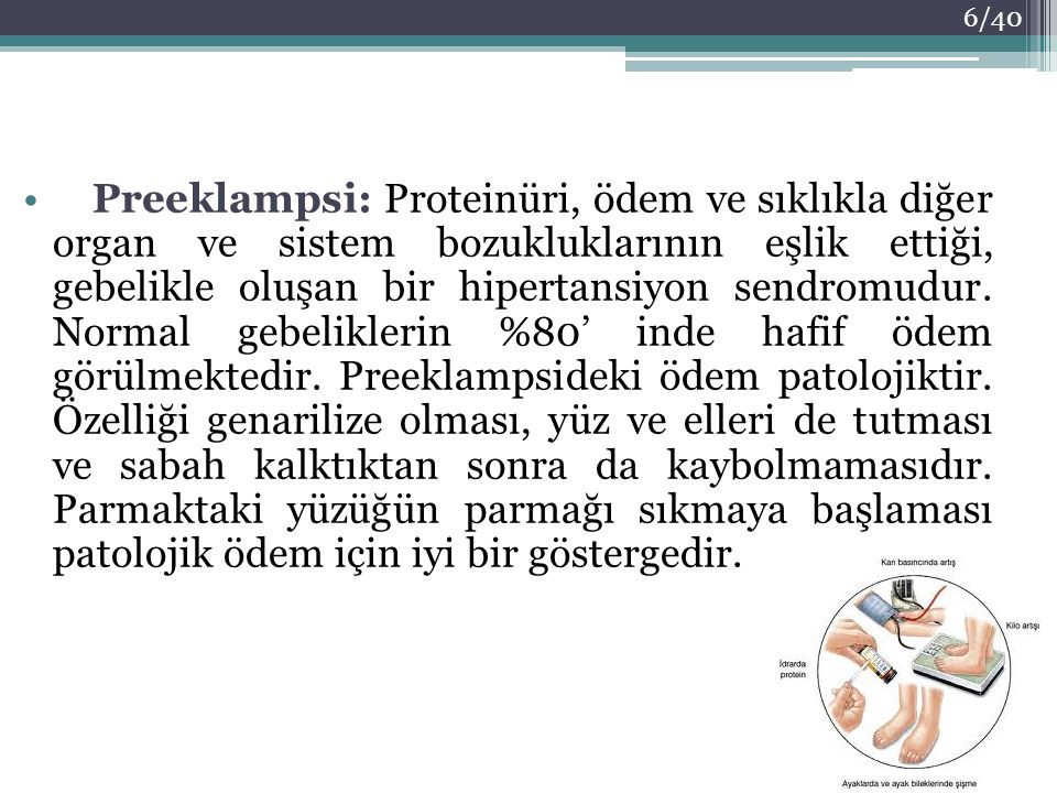 Preeklampsi: Proteinüri, ödem ve sıklıkla diğer organ ve sistem bozukluklarının eşlik ettiği, gebelikle oluşan bir hipertansiyon sendromudur. Normal g