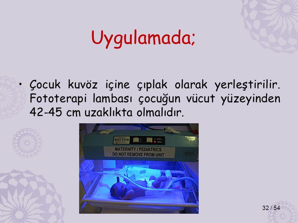 Uygulamada; Çocuk kuvöz içine çıplak olarak yerleştirilir. Fototerapi lambası çocuğun vücut yüzeyinden 42-45 cm uzaklıkta olmalıdır. 32 / 54