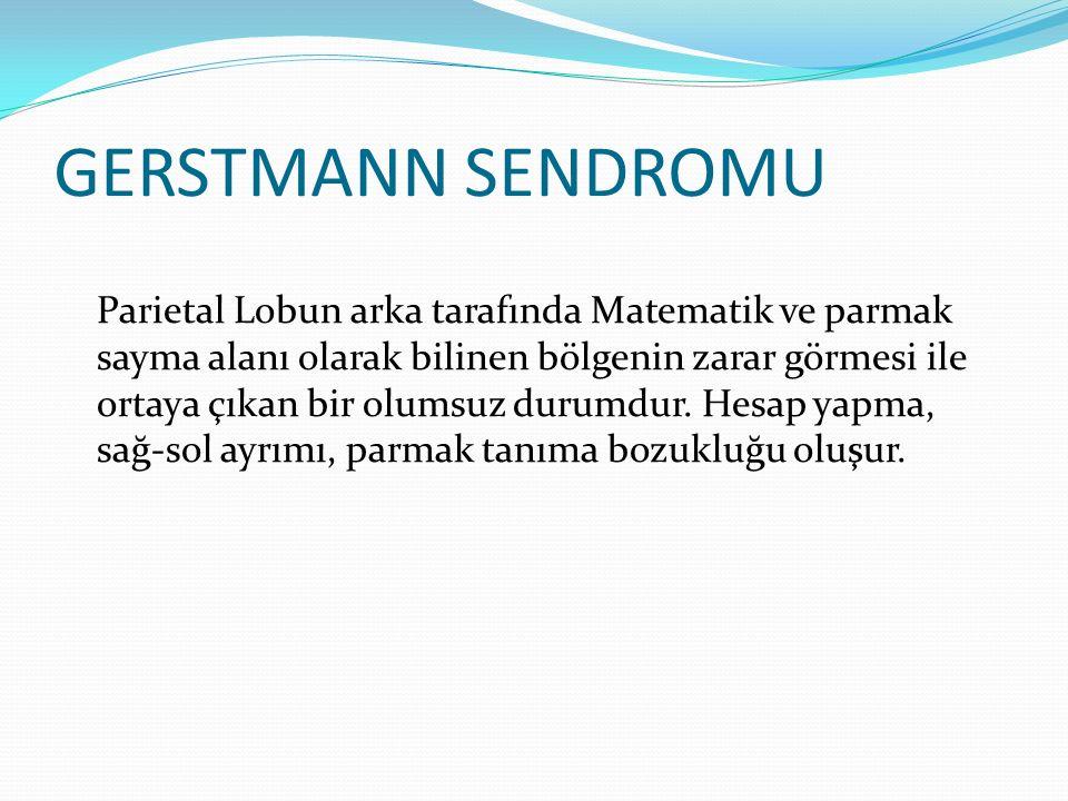 GERSTMANN SENDROMU Parietal Lobun arka tarafında Matematik ve parmak sayma alanı olarak bilinen bölgenin zarar görmesi ile ortaya çıkan bir olumsuz du