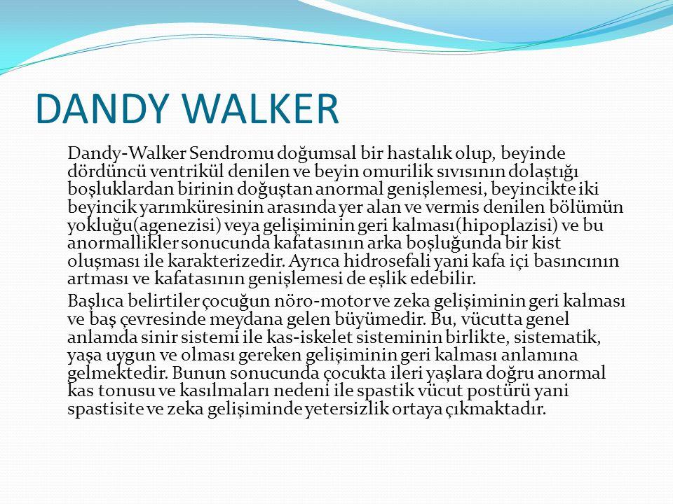 DANDY WALKER Dandy-Walker Sendromu doğumsal bir hastalık olup, beyinde dördüncü ventrikül denilen ve beyin omurilik sıvısının dolaştığı boşluklardan b