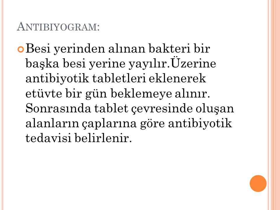 A NTIBIYOGRAM : Besi yerinden alınan bakteri bir başka besi yerine yayılır.Üzerine antibiyotik tabletleri eklenerek etüvte bir gün beklemeye alınır. S
