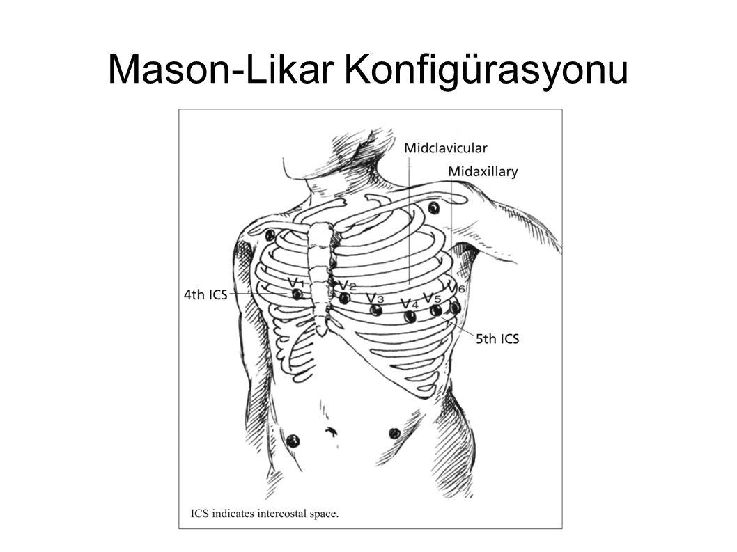 Mason-Likar Konfigürasyonu