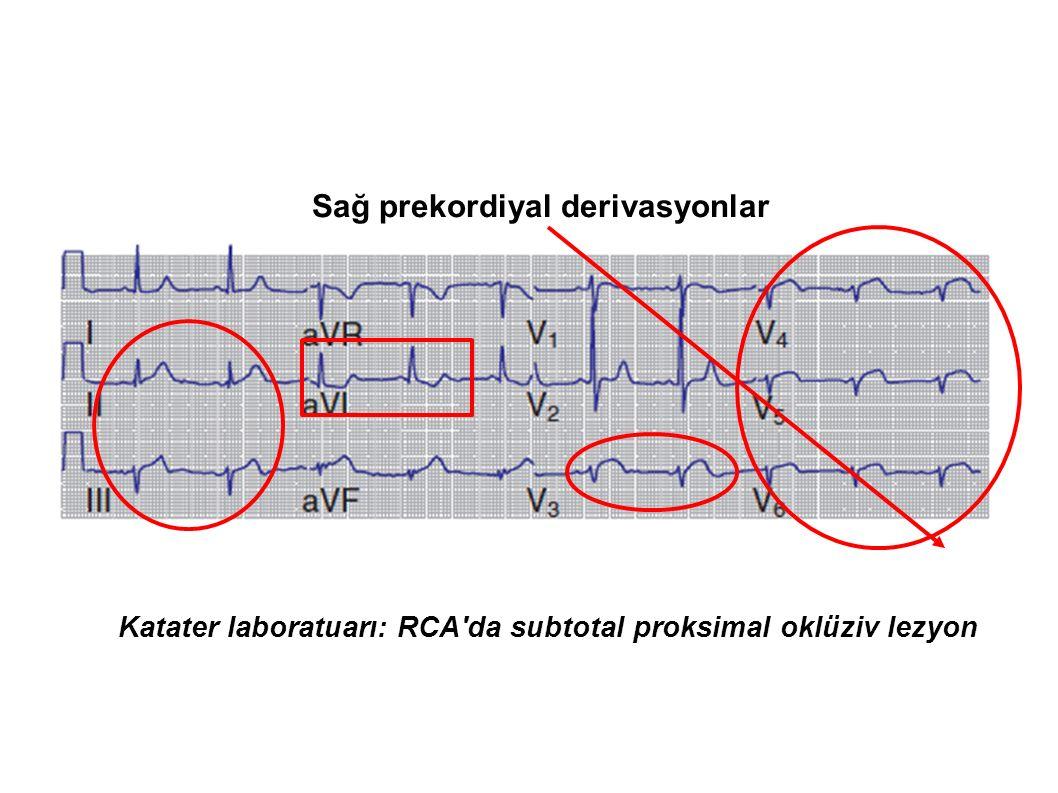 Sağ prekordiyal derivasyonlar Katater laboratuarı: RCA'da subtotal proksimal oklüziv lezyon