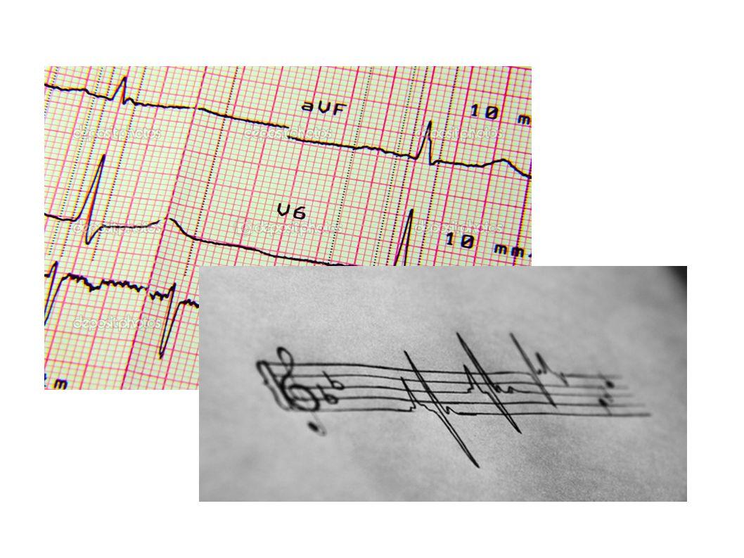 RL (N) nin Hatalı Yerleşimi Ekstremite derivasyonlarından birisi düz bir çizgi olarak görünür (Sıfır potansiyel fark).