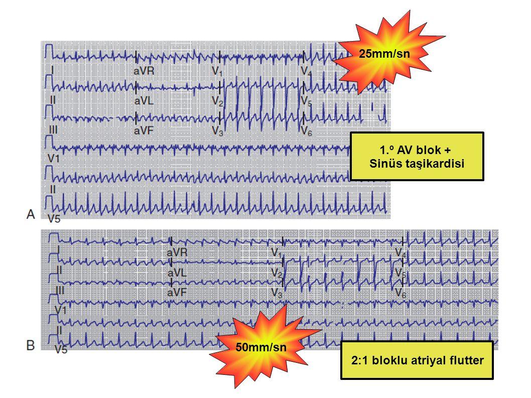 25mm/sn 50mm/sn 1.º AV blok + Sinüs taşikardisi 2:1 bloklu atriyal flutter