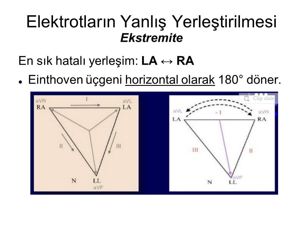 Elektrotların Yanlış Yerleştirilmesi Ekstremite En sık hatalı yerleşim: LA ↔ RA Einthoven üçgeni horizontal olarak 180° döner.