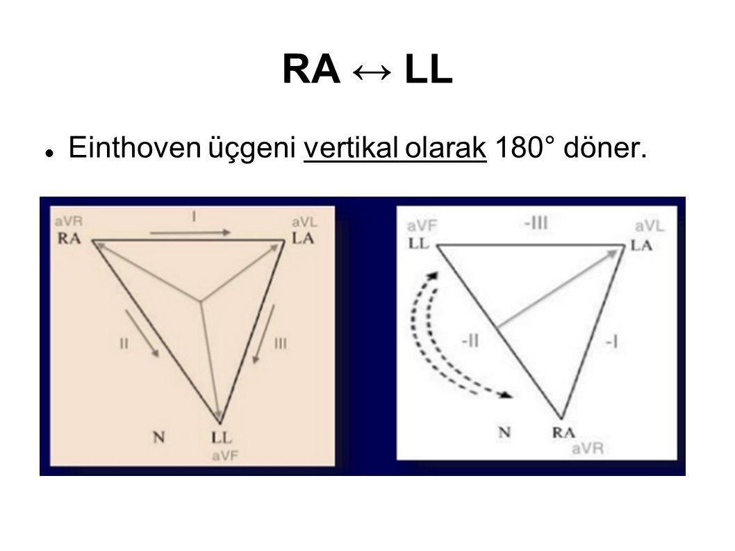 RA ↔ LL Einthoven üçgeni vertikal olarak 180° döner.