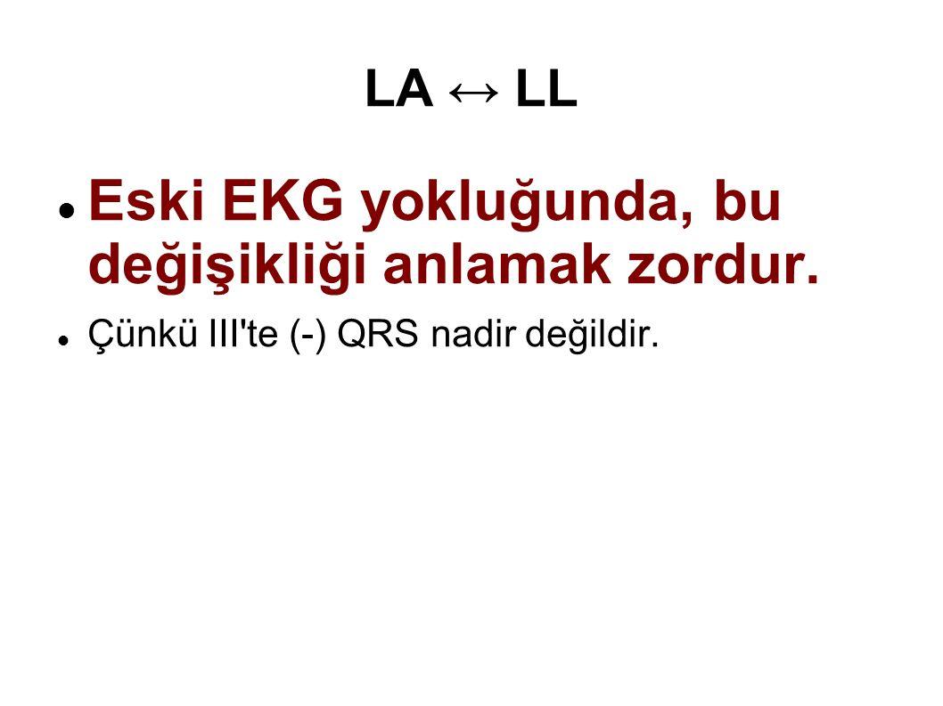 Eski EKG yokluğunda, bu değişikliği anlamak zordur. Çünkü III'te (-) QRS nadir değildir.