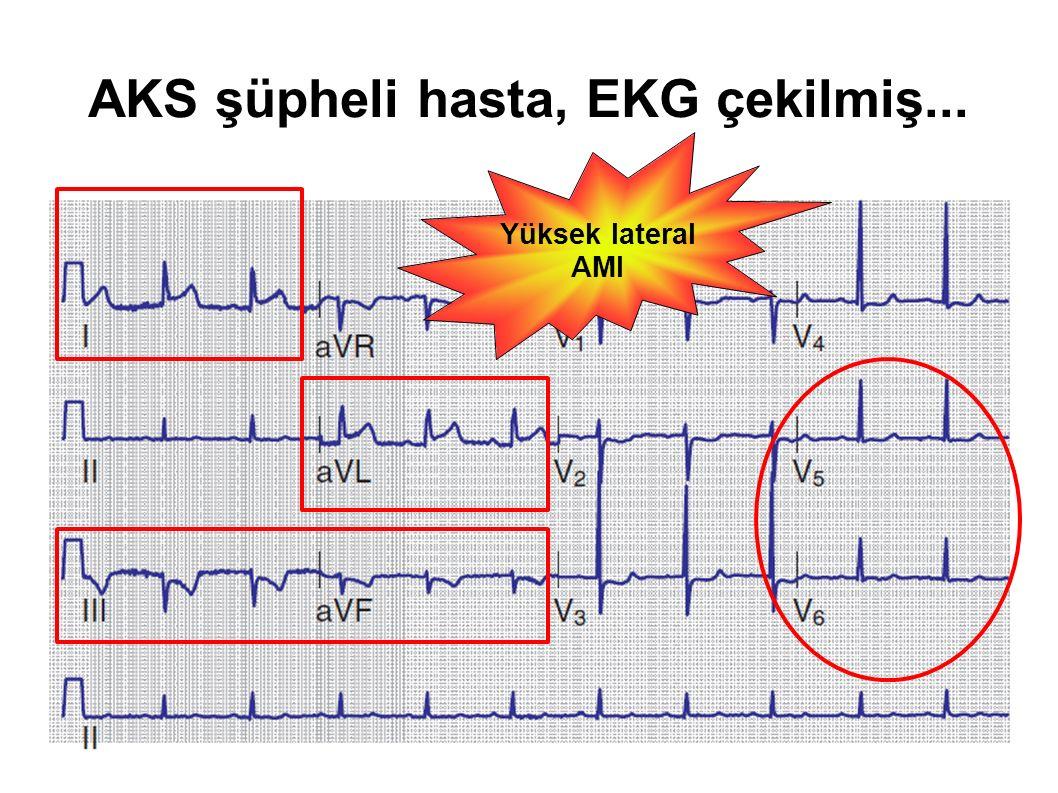 AKS şüpheli hasta, EKG çekilmiş... Yüksek lateral AMI