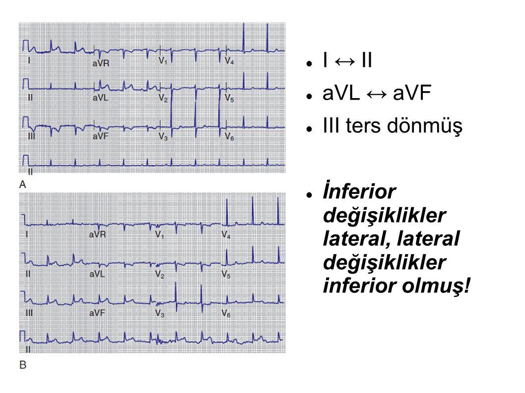 I ↔ II aVL ↔ aVF III ters dönmüş İnferior değişiklikler lateral, lateral değişiklikler inferior olmuş!