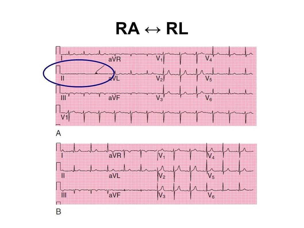 RA ↔ RL