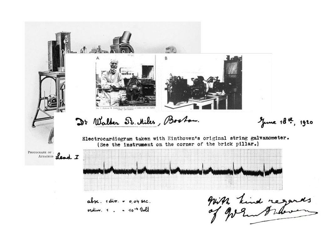 Elektrotların Yanlış Yerleştirilmesi Prekordiyal Eski EKG ile karşılaştır.