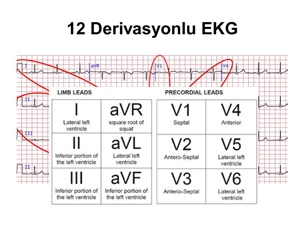 12 Derivasyonlu EKG
