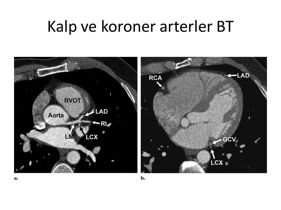 Kalp ve koroner arterler BT