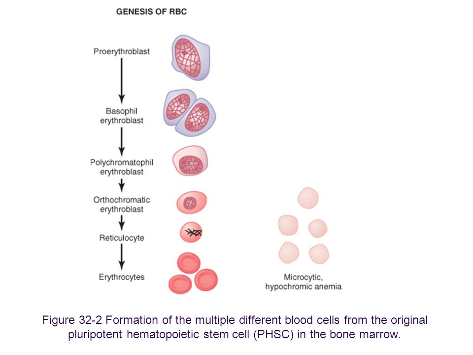 Figure 32-2 Formation of the multiple different blood cells from the original pluripotent hematopoietic stem cell (PHSC) in the bone marrow. Downloade
