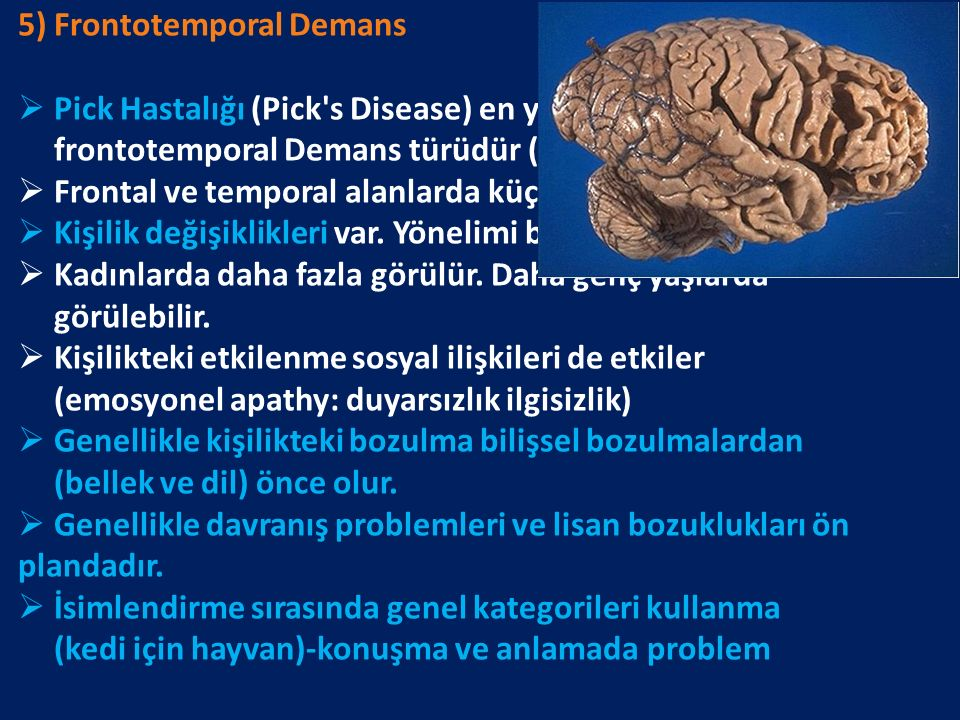 5) Frontotemporal Demans  Pick Hastalığı (Pick s Disease) en yayğın görülen frontotemporal Demans türüdür (50-60 yaş).