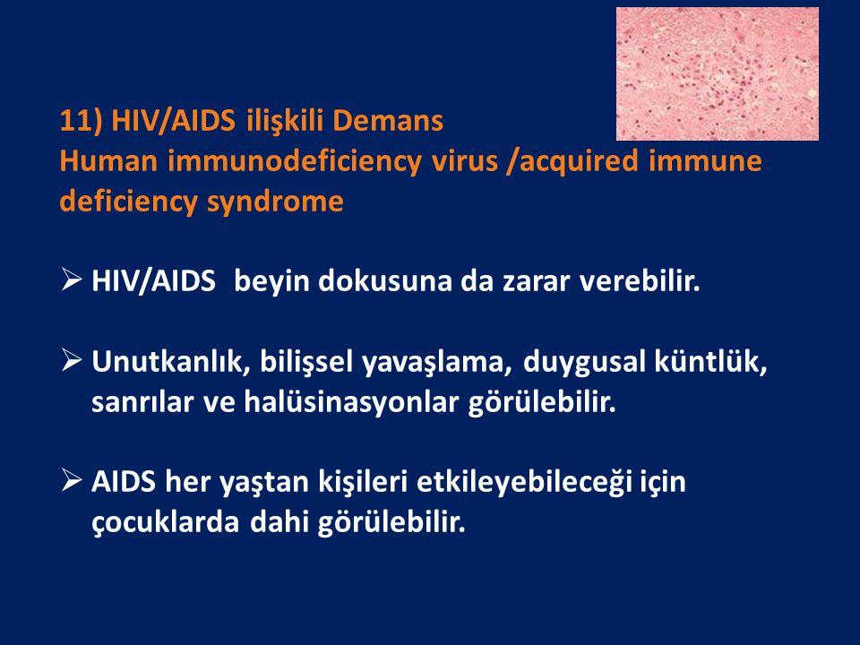 11) HIV/AIDS ilişkili Demans Human immunodeficiency virus /acquired immune deficiency syndrome  HIV/AIDS beyin dokusuna da zarar verebilir.