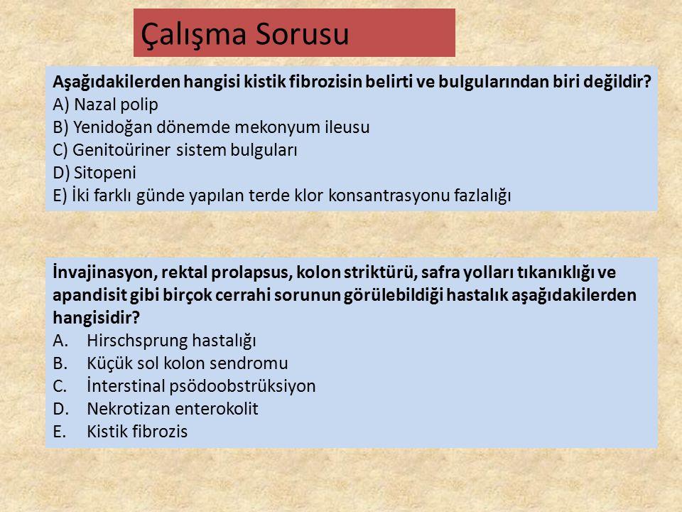 Aşağıdakilerden hangisi kistik fibrozisin belirti ve bulgularından biri değildir? A) Nazal polip B) Yenidoğan dönemde mekonyum ileusu C) Genitoüriner