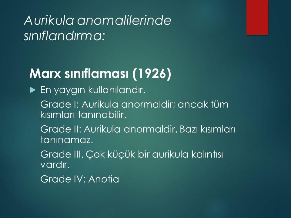 Aurikula anomalilerinde sınıflandırma: Marx sınıflaması (1926)  En yaygın kullanılandır.