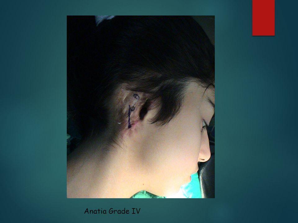 Anatia Grade IV