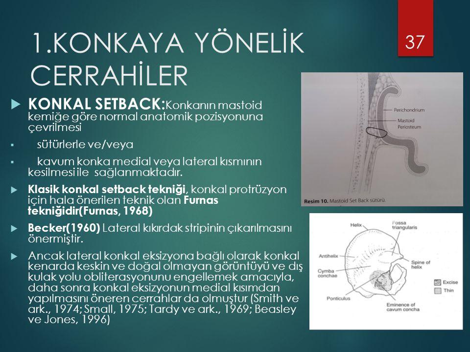 1.KONKAYA YÖNELİK CERRAHİLER  KONKAL SETBACK: Konkanın mastoid kemiğe göre normal anatomik pozisyonuna çevrilmesi  sütürlerle ve/veya  kavum konka medial veya lateral kısmının kesilmesi ile sağlanmaktadır.