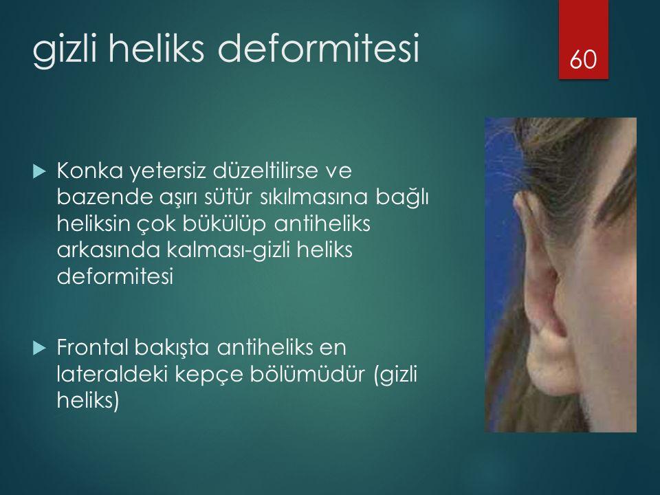 gizli heliks deformitesi  Konka yetersiz düzeltilirse ve bazende aşırı sütür sıkılmasına bağlı heliksin çok bükülüp antiheliks arkasında kalması-gizli heliks deformitesi  Frontal bakışta antiheliks en lateraldeki kepçe bölümüdür (gizli heliks) 60