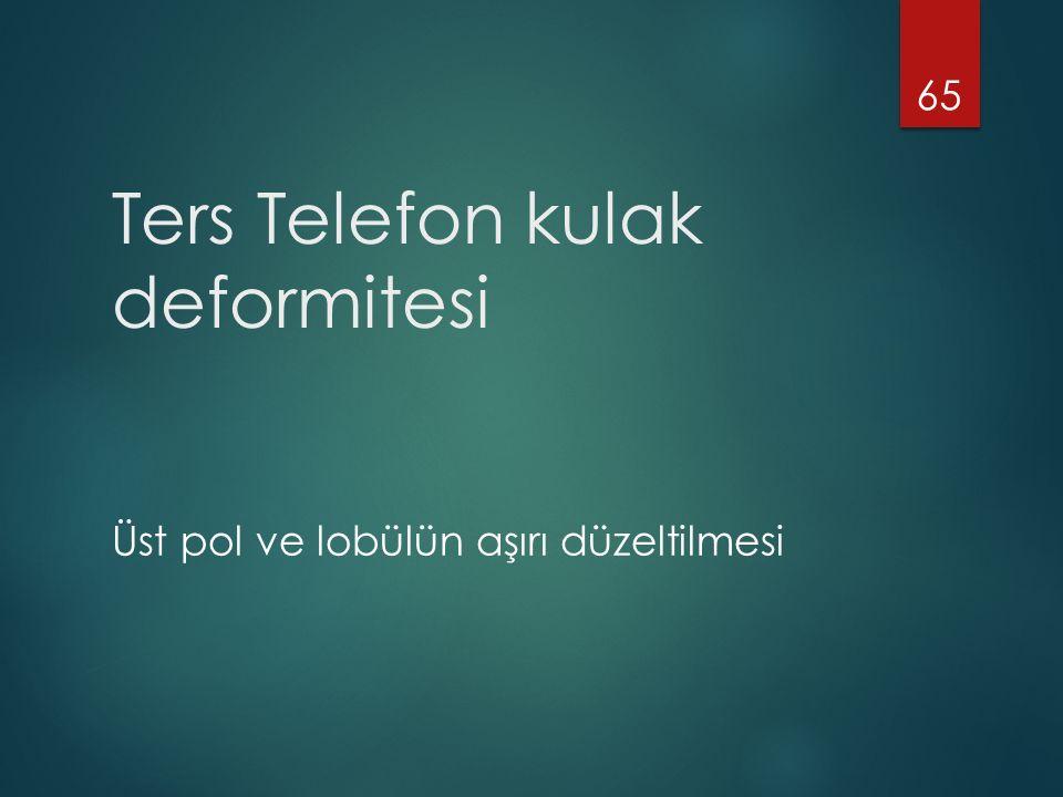 Ters Telefon kulak deformitesi Üst pol ve lobülün aşırı düzeltilmesi 65