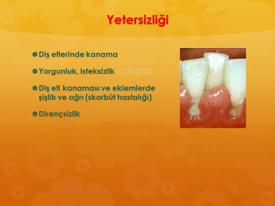 Yetersizliği  Diş etlerinde kanama  Yorgunluk, isteksizlik  Yorgunluk, isteksizlik  Diş eti kanaması ve eklemlerde şişlik ve ağrı (skorbüt hastalı