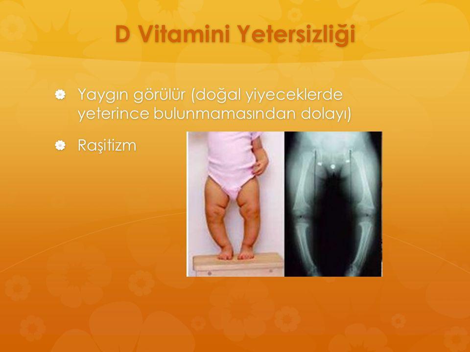 D Vitamini Yetersizliği  Yaygın görülür (doğal yiyeceklerde yeterince bulunmamasından dolayı)  Raşitizm
