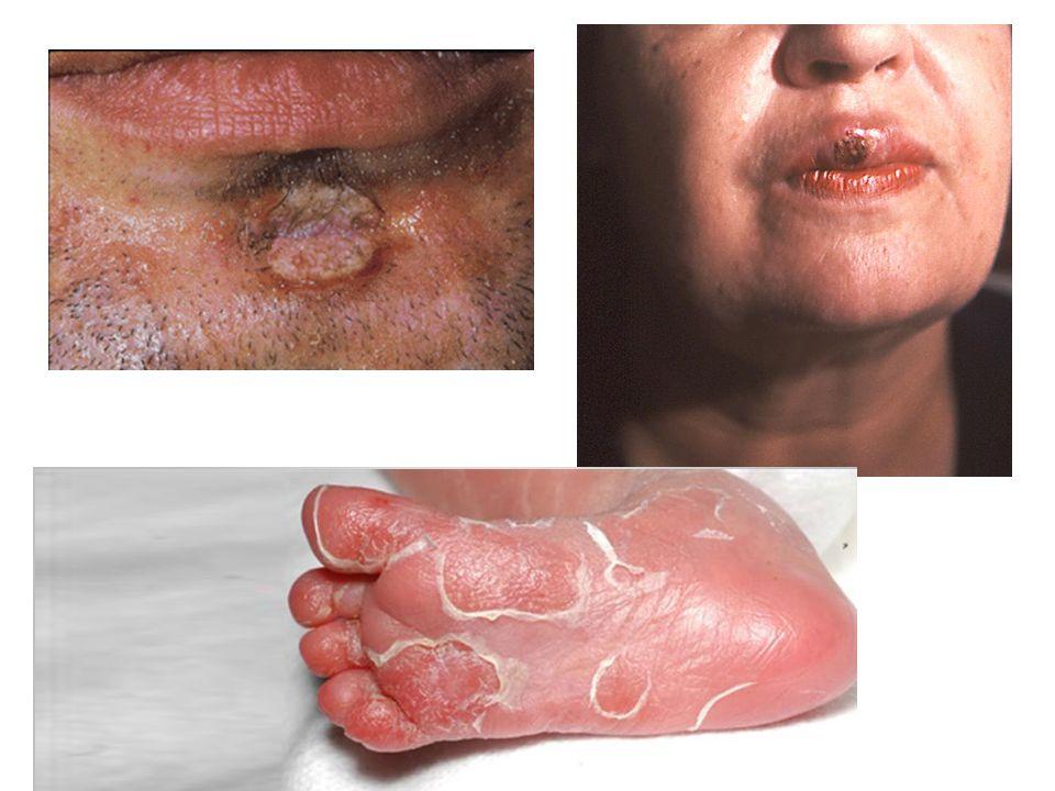 SEKONDER SİFİLİZ Etkenin alınmasından 6-12 hafta vücut yüzeyinde döküntüler görülür Kırmızı, kahverengi döküntüler halinde en çok el ayası, ayak tabanında görülür Bazen çok soluktur ve bu dönem de farkedilmeden geçebilir ve hasta yıllar sonra üçüncü safhaya geçebilir Özellikle anogenital bölgede lezyonlar