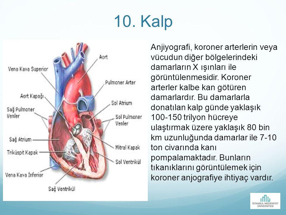 10. Kalp Anjiyografi, koroner arterlerin veya vücudun diğer bölgelerindeki damarların X ışınları ile görüntülenmesidir. Koroner arterler kalbe kan göt