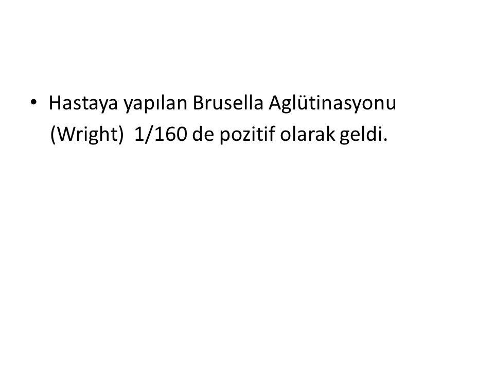 Hastaya yapılan Brusella Aglütinasyonu (Wright) 1/160 de pozitif olarak geldi.