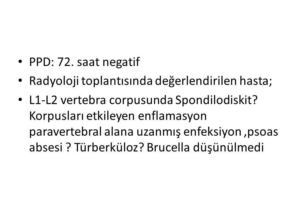 PPD: 72. saat negatif Radyoloji toplantısında değerlendirilen hasta; L1-L2 vertebra corpusunda Spondilodiskit? Korpusları etkileyen enflamasyon parave
