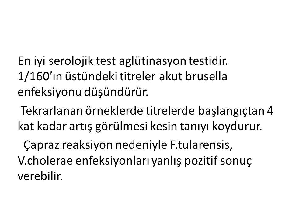 En iyi serolojik test aglütinasyon testidir.