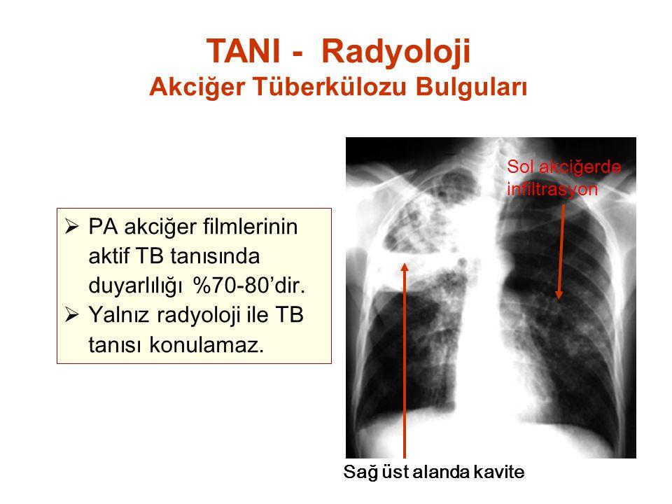 Sağ üst alanda kavite Sol akciğerde infiltrasyon  PA akciğer filmlerinin aktif TB tanısında duyarlılığı %70-80'dir.  Yalnız radyoloji ile TB tanısı
