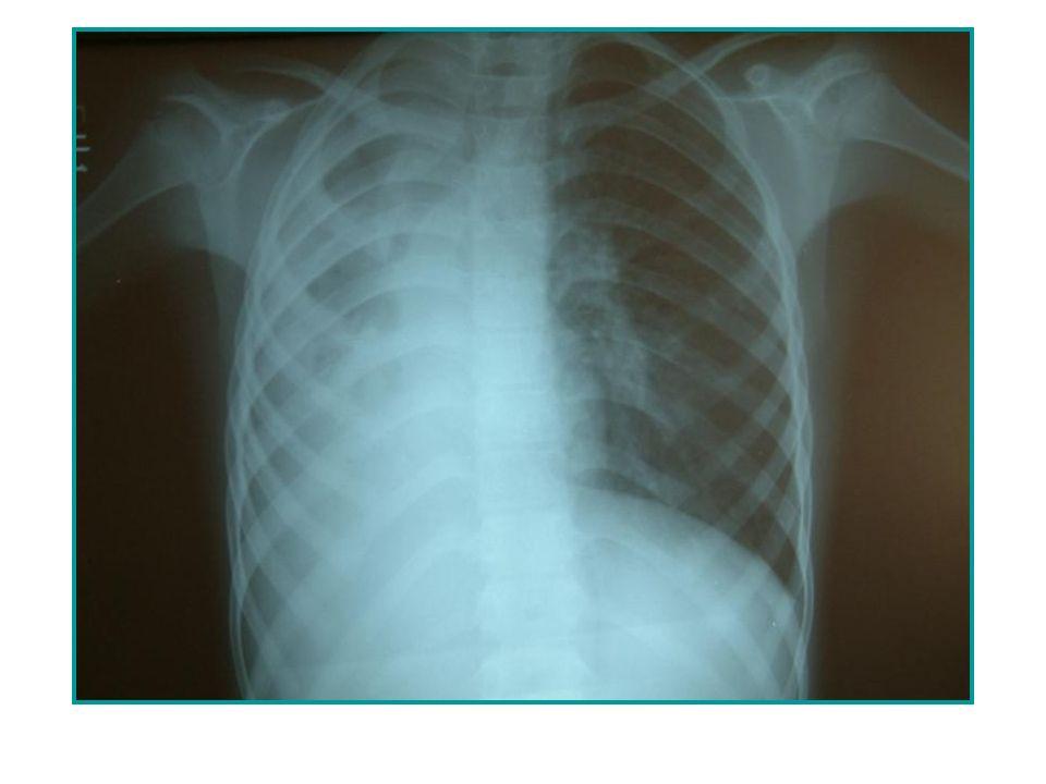 Tüberküloz hastası her öksürük ile; 1-5 mikron çapında, 1-3 adet basil içeren, 3500 kadar enfeksiyöz parçacığı etrafa saçar.
