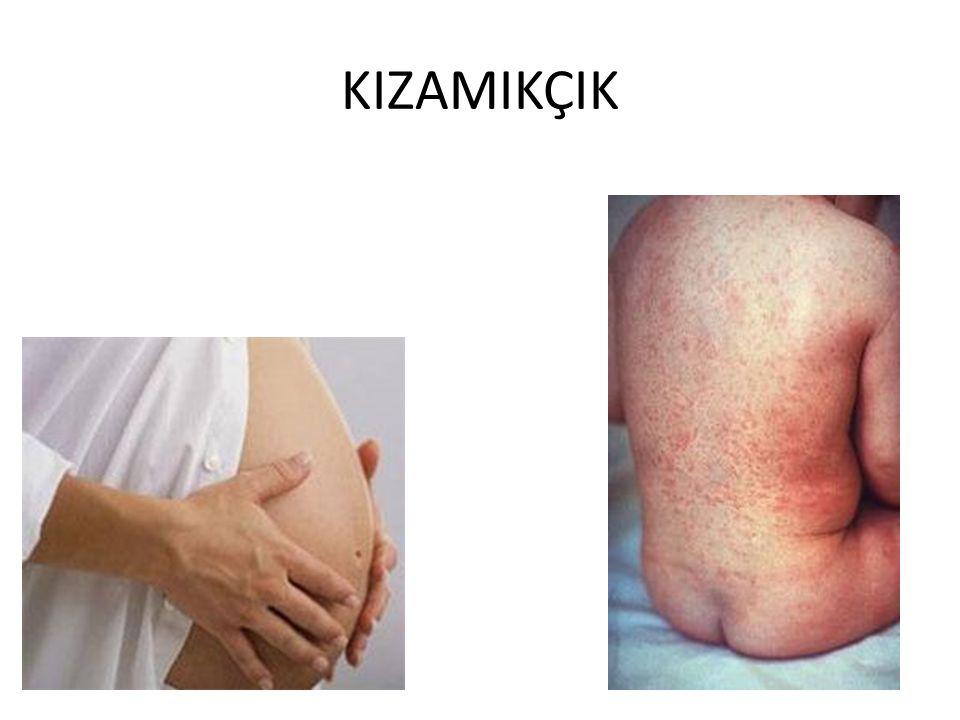 KIZAMIKÇIK