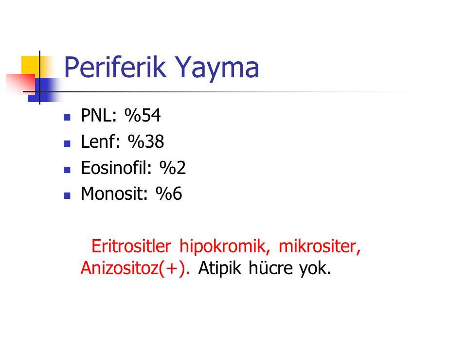Periferik Yayma PNL: %54 Lenf: %38 Eosinofil: %2 Monosit: %6 Eritrositler hipokromik, mikrositer, Anizositoz(+).