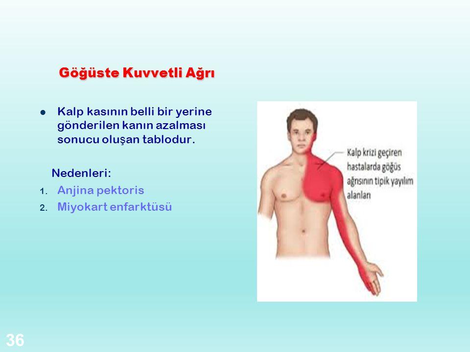 Göğüste Kuvvetli Ağrı Kalp kasının belli bir yerine gönderilen kanın azalması sonucu olu ş an tablodur. Nedenleri: 1. Anjina pektoris 2. Miyokart enfa