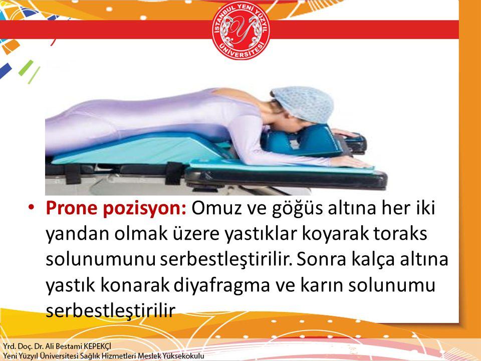 Prone pozisyon: Omuz ve göğüs altına her iki yandan olmak üzere yastıklar koyarak toraks solunumunu serbestleştirilir.