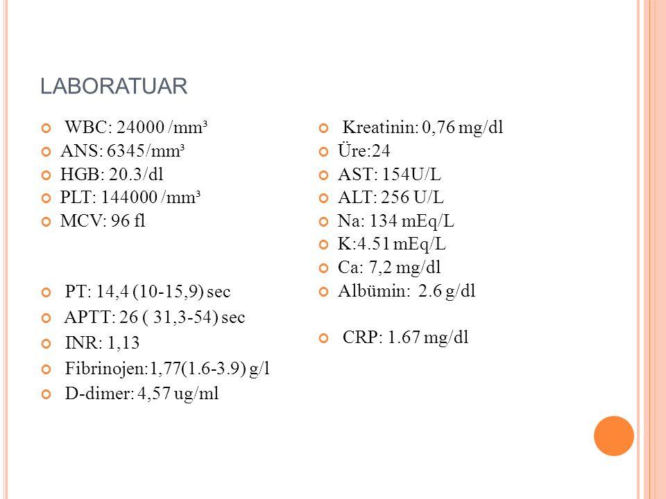 LABORATUAR WBC: 24000 /mm³ ANS: 6345/mm³ HGB: 20.3/dl PLT: 144000 /mm³ MCV: 96 fl PT: 14,4 (10-15,9) sec APTT: 26 ( 31,3-54) sec INR: 1,13 Fibrinojen: