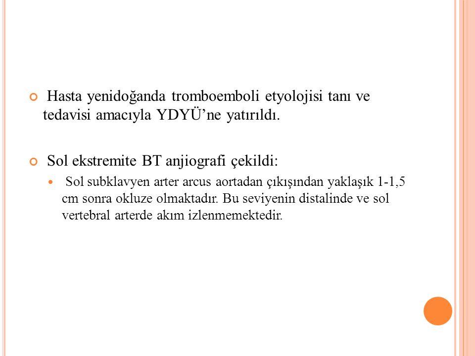 Hasta yenidoğanda tromboemboli etyolojisi tanı ve tedavisi amacıyla YDYÜ'ne yatırıldı. Sol ekstremite BT anjiografi çekildi: Sol subklavyen arter arcu