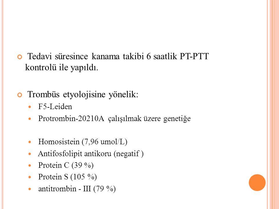 Tedavi süresince kanama takibi 6 saatlik PT-PTT kontrolü ile yapıldı. Trombüs etyolojisine yönelik: F5-Leiden Protrombin-20210A çalışılmak üzere genet