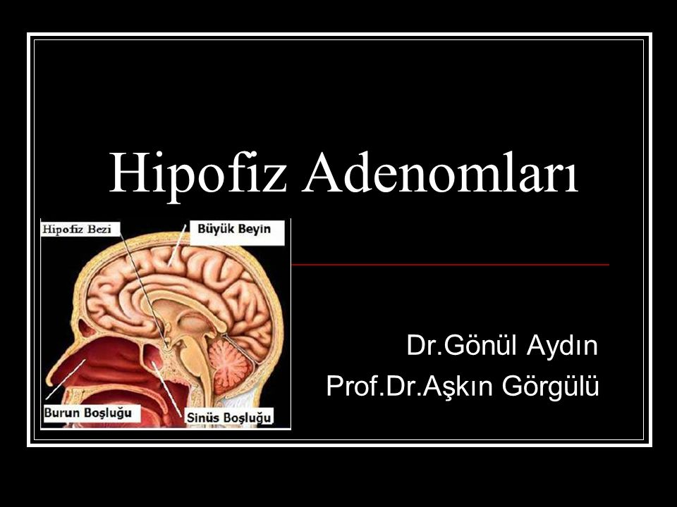 Hipofiz Adenomları Dr.Gönül Aydın Prof.Dr.Aşkın Görgülü