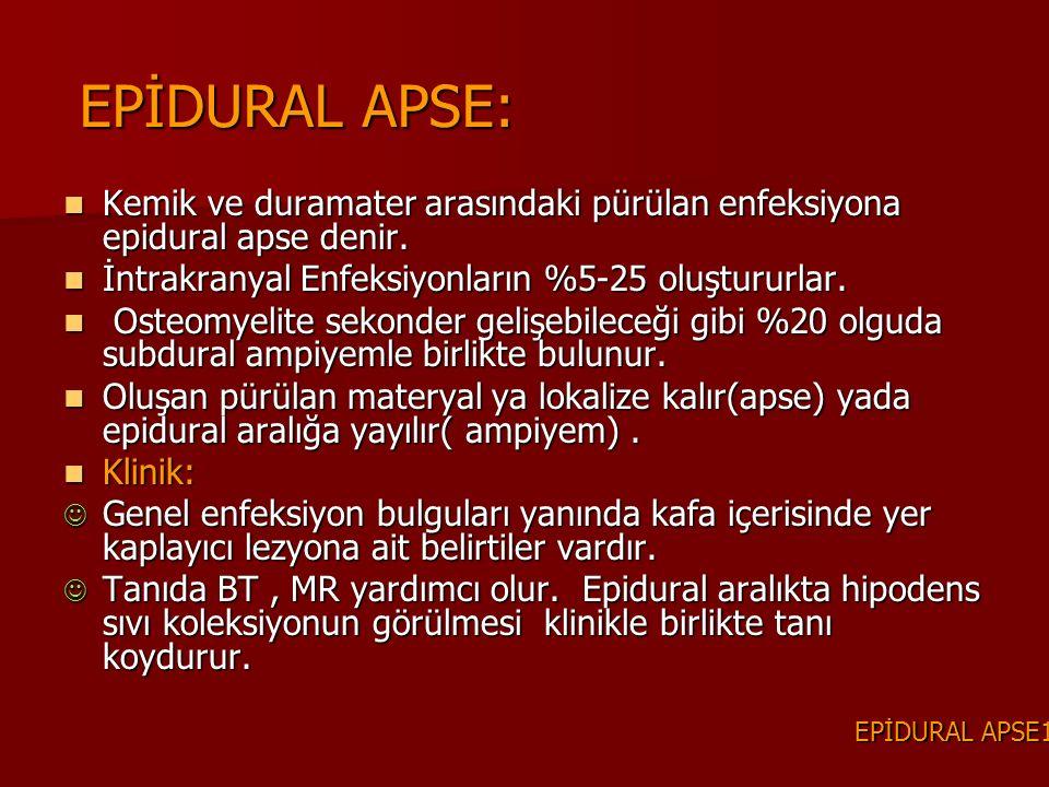 EPİDURAL APSE: Kemik ve duramater arasındaki pürülan enfeksiyona epidural apse denir. Kemik ve duramater arasındaki pürülan enfeksiyona epidural apse